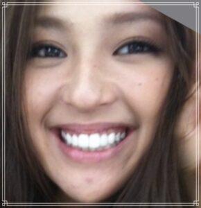 歯が綺麗になった中村アン